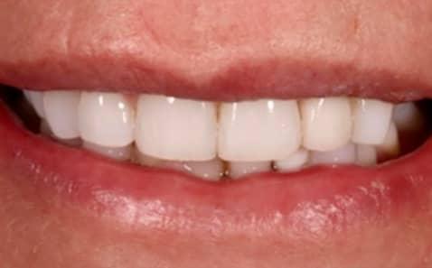 After - VICI Dental