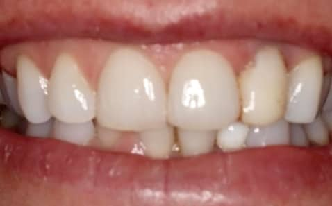 Before - VICI Dental