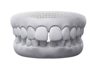 invisalign before after