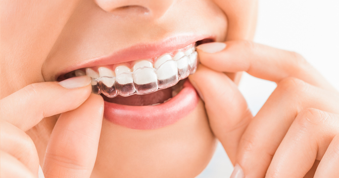 Treatment - VICI Dental